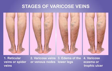Vene varicose su una gamba anziano femminile