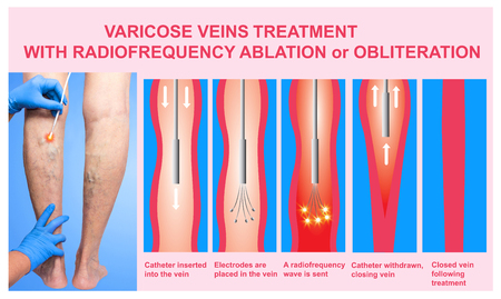 Varicose Veins and Treatment with radiofrequency ablation