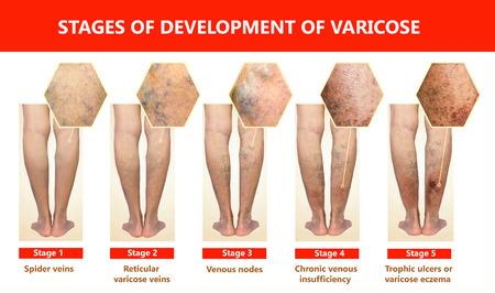 Le vene varicose su una gamba femminile senior