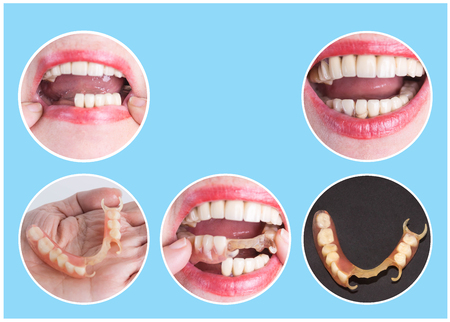 Dental rehabilitation with upper and lower prosthesis, before and after treatment Stock Photo