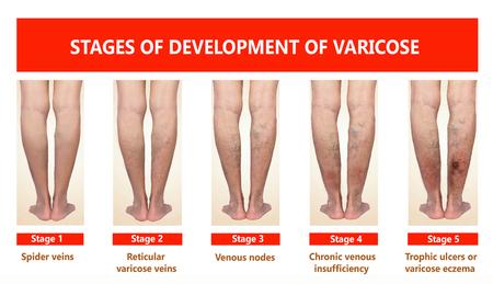 Las venas varicosas en una pierna senior femenina