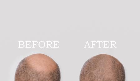 Human alopecia or hair loss - adult man hand holding comb
