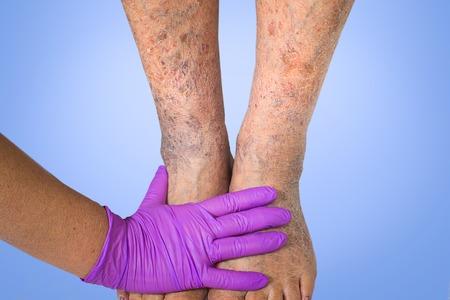 Close-up of skin with varicose veins on senior male leg. Concept of dry skin, old senior people, varicose veins 版權商用圖片 - 107580891