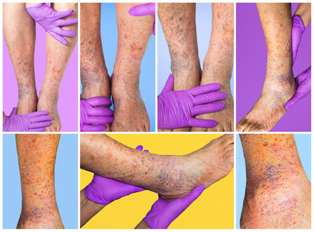 The collage of skin with varicose veins on senior male legs. Concept of dry skin Stock Photo