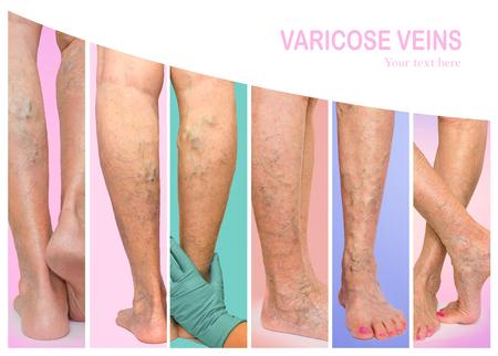 The female legs with veins varicose spider at studio. Collage Foto de archivo