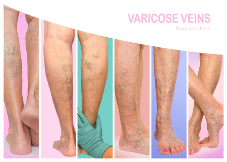 The female legs with veins varicose spider at studio. Collage Stock Photo