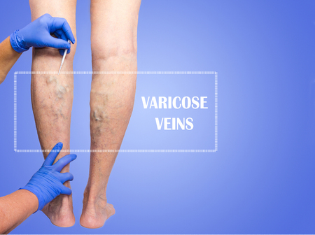 Lower limb vascular examination because suspect of venous insufficiency. The female legs on blue background. Senior woman