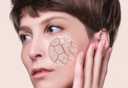Woman face covered with cracked earth texture- symbol of dry skin. Problems of dehydrated female skin