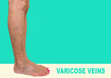 The varicose veins on female legs on green background Stock Photo