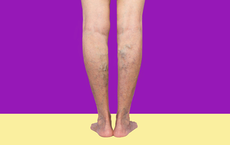 The varicose veins on female legs on lilac background