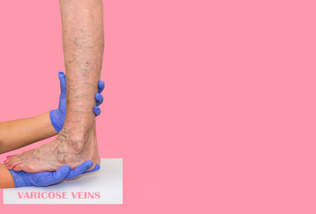 The varicose veins on lilac background