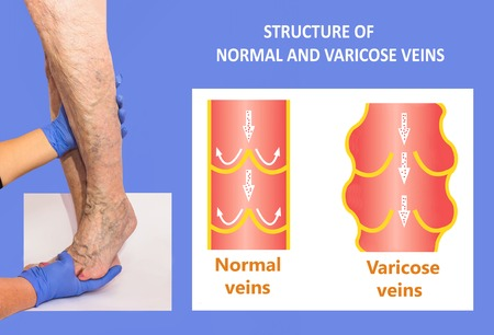 Varicose veins on a female senior legs. The structure of normal and varicose veins, with copy space