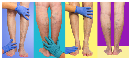 The varicose veins on female legs on colored background
