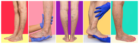The female legs with veins varicose spider at studio. Collage. Lower limb vascular examination because suspect of venous insufficiency. The female legs on colored background. Varicose veins concept