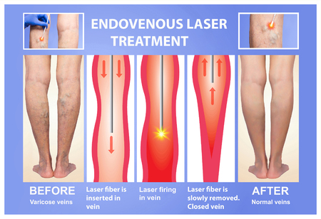 Varicose Veins. Endovenous laser treatment of female legs