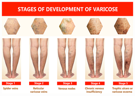 Varicose veins on a female senior legs. The stages of varicose veins. The old age and sick of a woman. Varicose veins on a legs of old woman. The varicosity, spider veins, edema, illness concept. collage Stock Photo