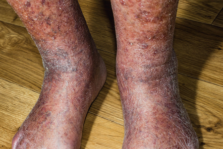 Close-up of skin with varicose veins on senior male leg. Concept of dry skin, old senior people, varicose veins