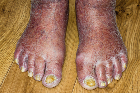 Fungus Infection on Nails of Mans Foot. Old senior man
