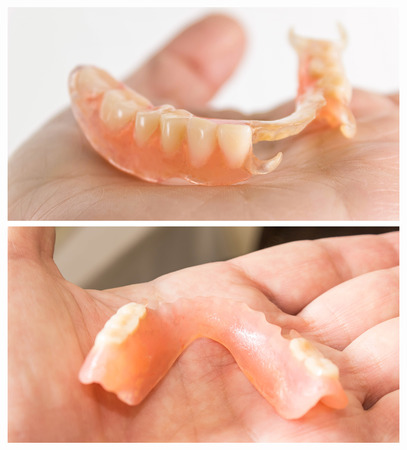 flexible nylon denture on male hand. Removable dentures flexible, devoid of nylon, hypoallergenic exempt from monomer Stockfoto - 118000954