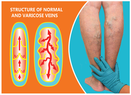 Varicose veins on a female senior legs. The structure of normal and varicose veins. Concept of dry skin, old senior people, varicose veins and deep vein thrombosis or DVT Stockfoto - 118000961