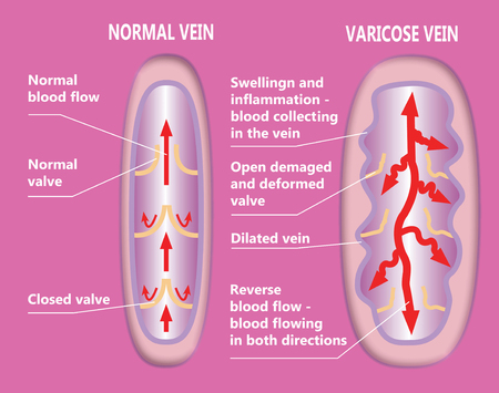 The structure of abstract varicose vein and normal vein