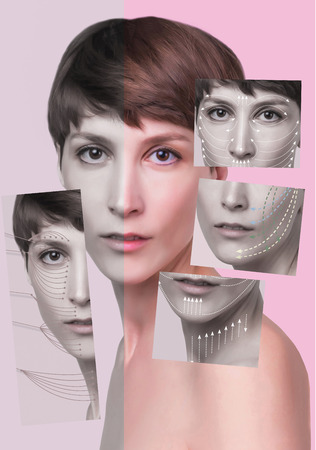 Collage about beautiful woman who wants to lift face to remove wrinkles and skin rejuvenation. Concept of threads lifting of female face Stock Photo