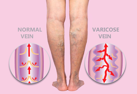 Varicose veins on a female senior legs. The structure of normal and varicose veins. Concept of dry skin, old senior people, varicose veins and deep vein thrombosis or DVT 版權商用圖片 - 118000919