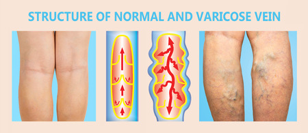 Varicose veins on a female senior legs. The structure of normal and varicose veins. Concept of dry skin, old senior people, varicose veins and deep vein thrombosis or DVT 版權商用圖片 - 118000923