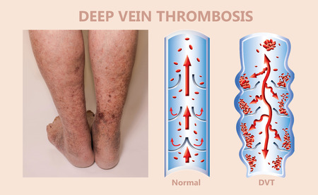 Economy class syndrome mechanism, deep vein thrombosis or DVT, Pulmonary Embolism or PE, coronary thrombosis, illustration diagram at male legs
