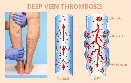 Deep Vein Thrombosis or Blood Clots. Embolus. Structure of normal and varicose female veins Reklamní fotografie - 118000938