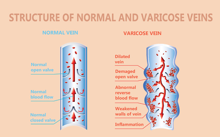 The structure of normal and varicose veins Stock Photo