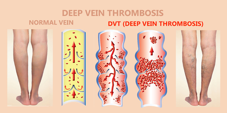 Deep Vein Thrombosis or Blood Clots. Embolus. Structure of normal and varicose femalr veins