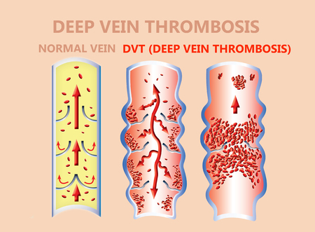 thrombosis. From Normal blood flow to Blood clot formation, and clot, that travels through the bloodstream. embolism. illustration for biological, medical, and science use