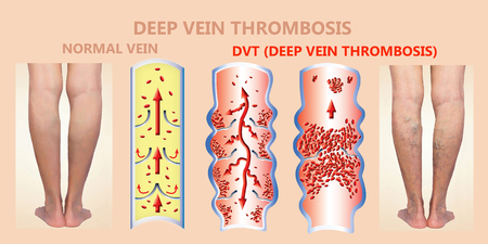 Deep Vein Thrombosis or Blood Clots. Embolus. Structure of normal and varicose female veins