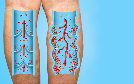 Varicose veins on a female senior legs. The structure of normal and varicose veins. Concept of dry skin, old senior people, varicose veins and deep vein thrombosis or DVT
