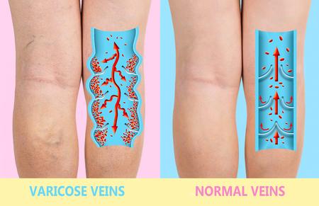 Les varices sur les jambes d'un senior féminin. La structure des veines normales et variqueuses. Concept de peau sèche, personnes âgées âgées, varices et thrombose veineuse profonde ou TVP