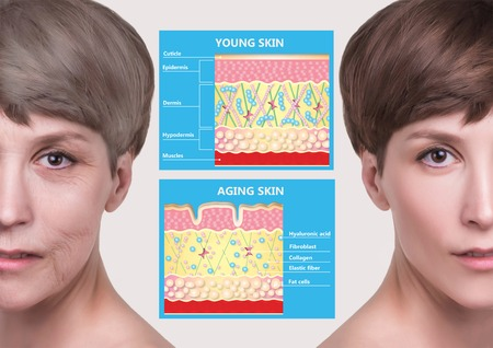 The younger skin and aging skin. elastin and collagen. A diagram of young and old face showing the decrease in collagen and broken elastin. Stock fotó