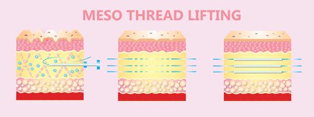 illustration of meso threads lifting Stockfoto - 121270394