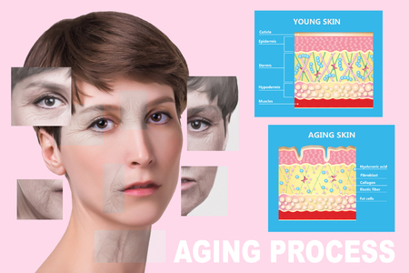 The younger skin and aging skin. elastin and collagen. A diagram of young and old face showing the decrease in collagen and broken elastin. Stockfoto - 121270400