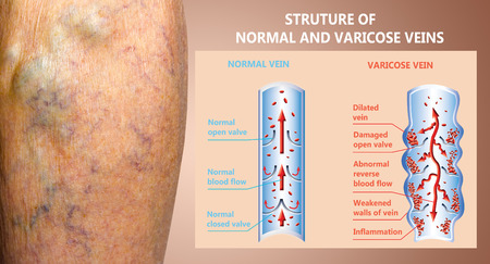 Varicose veins on a female senior legs. The structure of normal and varicose veins. Concept of dry skin, old senior people, varicose veins and deep vein thrombosis or DVT Stockfoto - 121271025