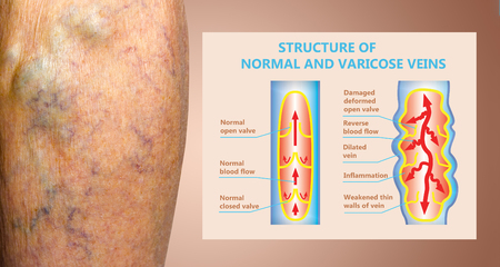 Varicose veins on a female senior legs. The structure of normal and varicose veins. Concept of dry skin, old senior people, varicose veins and deep vein thrombosis or DVT Stockfoto - 121271049