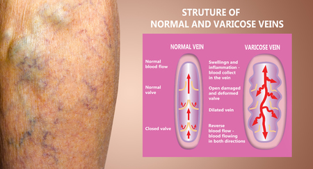 Varicose veins on a female senior legs. The structure of normal and varicose veins. Concept of dry skin, old senior people, varicose veins and deep vein thrombosis or DVT Stockfoto - 121271153