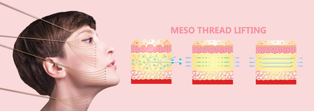 Meso thread Lift. Young female with clean fresh skin. Beautiful woman. face and neck. Stockfoto