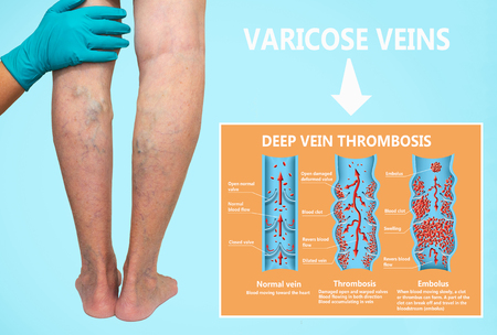 Thrombosis. From normal blood flow to blood clot formation and clot, that travels through the bloodstream. Embolism. biological, medical, and science use. Varicose veins Stockfoto - 121271354