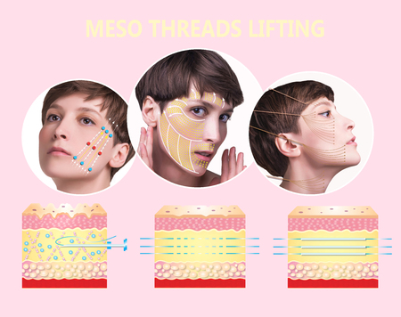 Meso thread Lift. Young female with clean fresh skin. Stockfoto