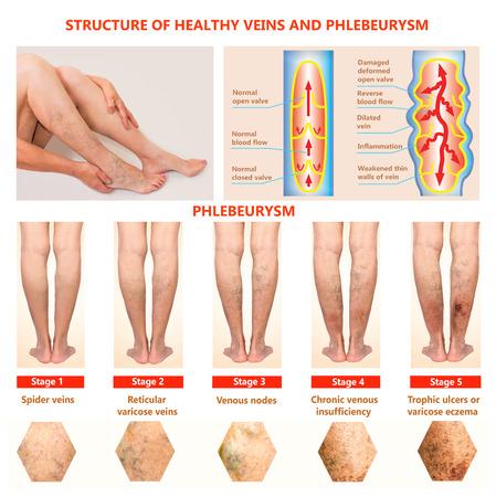 Thrombophlébite. Thrombose veineuse profonde. Varices. Phlébeurisme. Structure des veines normales et veine malsaine