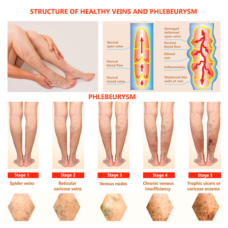 Thrombophlebitis. Deep Vein Thrombosis. Varicose veins. Phlebeurysm. Structure of normal veins and unhealthy vein