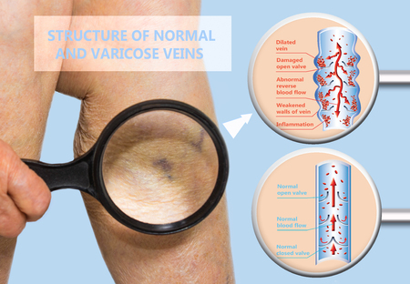 Varicose veins on a female senior legs. The structure of normal and varicose veins. Concept of Thrombophlebitis. Deep Vein Thrombosis, old senior people, varicose vein and DVT