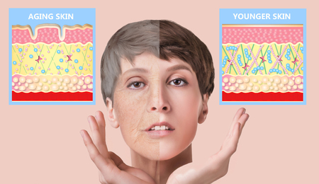 The younger skin and aging skin. elastin and collagen. A diagram of young and old face showing the decrease in collagen and broken elastin. Stockfoto