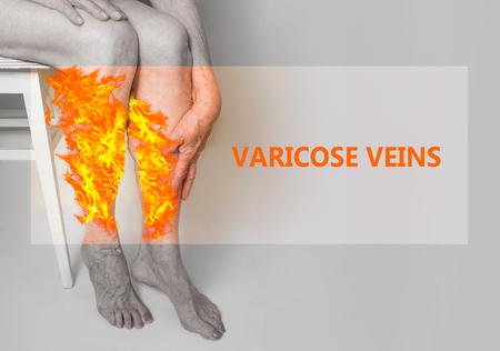 Varices sur les jambes d'une vieille femme en feu. Les varices, varicosités, œdème, concept de maladie. Femme retraitée senior avec les mains sur les jambes. Banque d'images